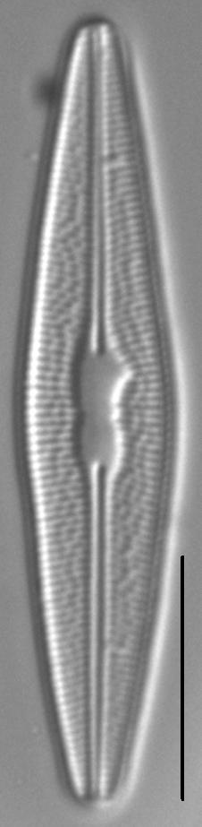 Brachysira styriaca LM1