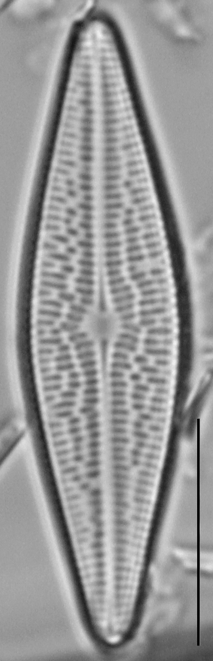 Brachysira brebissonii LM6