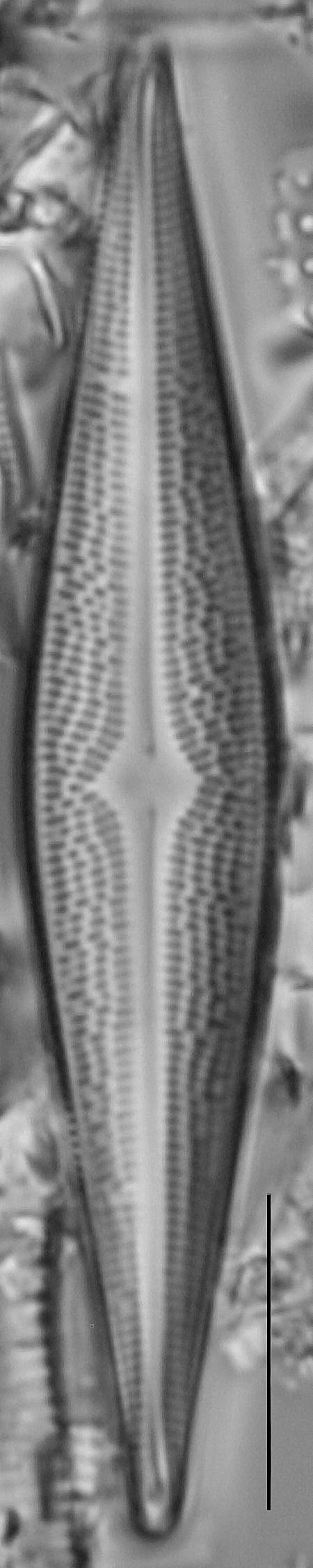 Bracysira neoacuta LM7