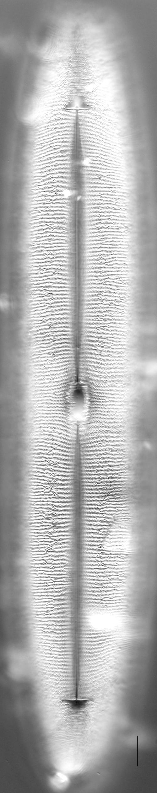 Frickea lewisiana LM5