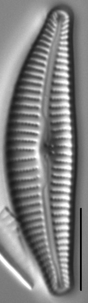 Cymbella Affiniformis1