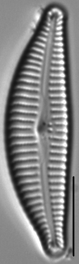 Cymbella Affiniformis4