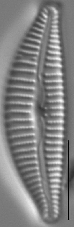 Cymbella Affiniformis7