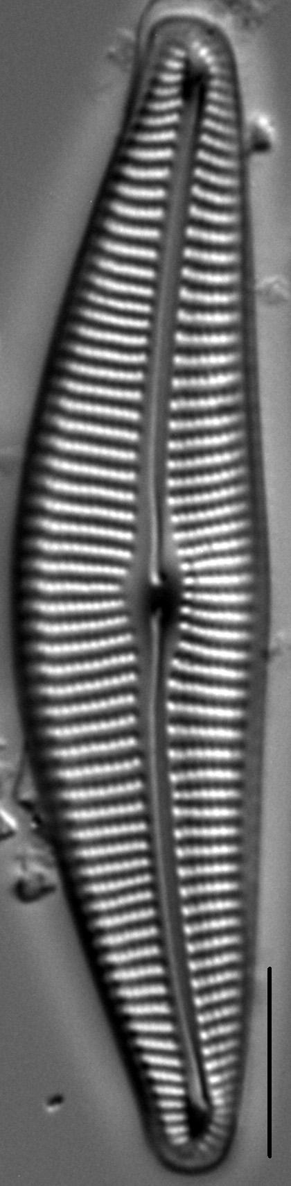 Cymbella Compacta1