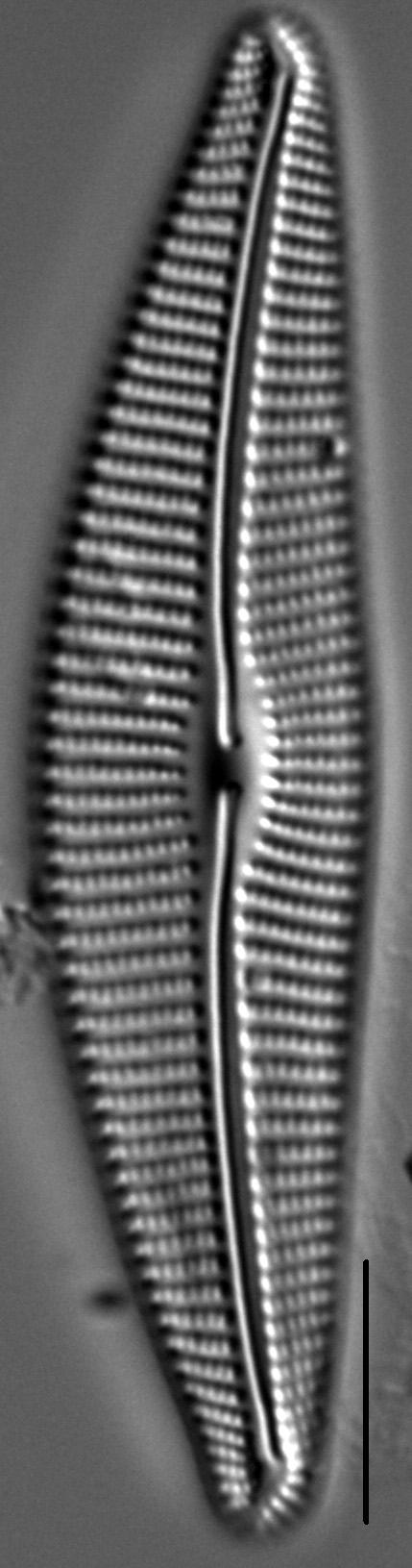 Cymbella Compacta2