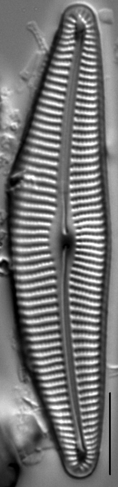 Cymbella Compacta3