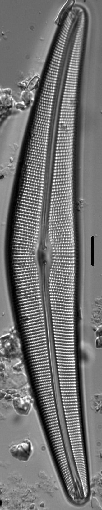 Cymbella Lanceolata3