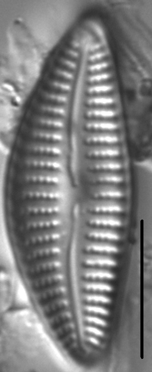 Cymbella Neoleptoceros4