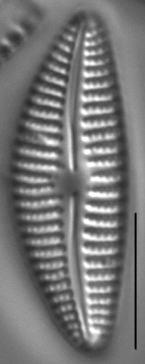 Cymbella Neoleptoceros5