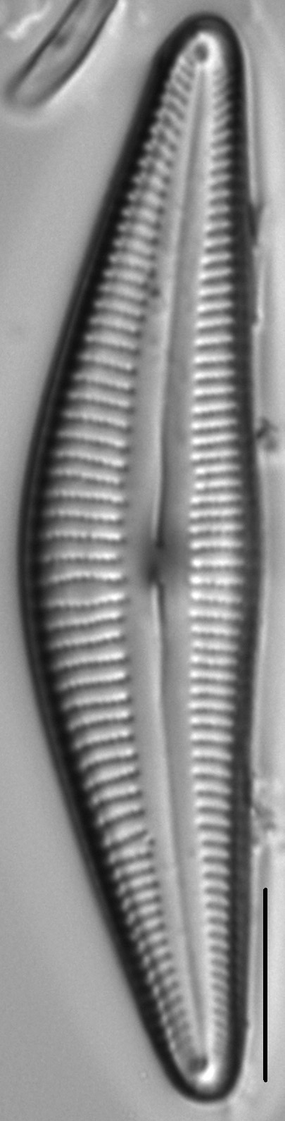Cymbella stigmaphora LM2