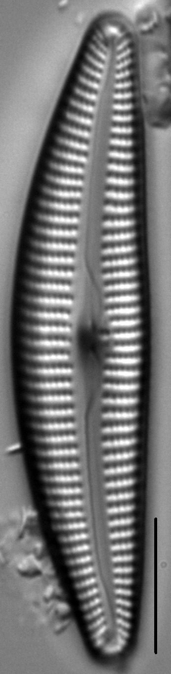 Cymbella Vulgata2