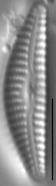 Cymbella cosleyi LM5