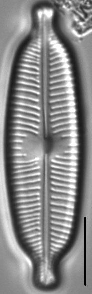 Cymbopleura elliptica LM4