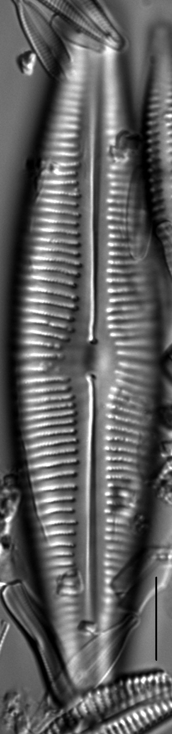Cymbopleura lata LM1
