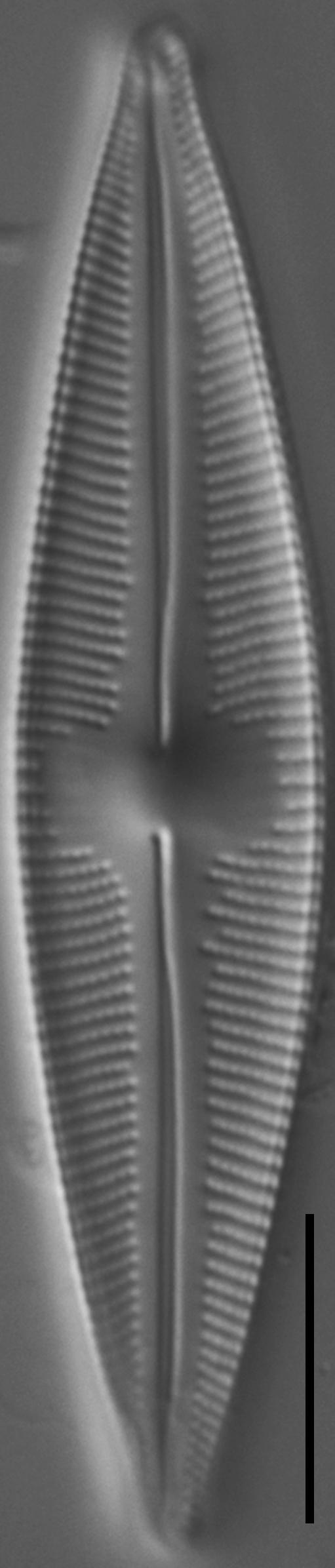Cymbopleura stauroneiformis LM3