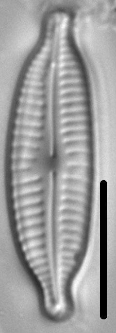 Cymbopleura amphicephala LM4