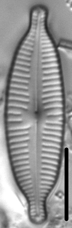 Cymbopleura amphicephala LM1