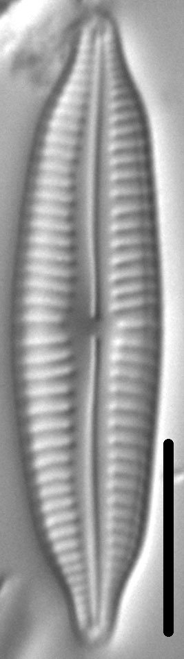 Cymbopleura frequens LM1
