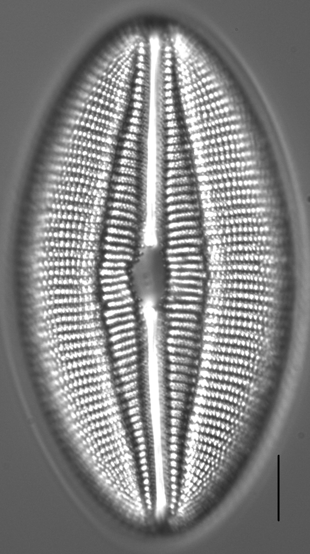 Diploneis finnica LM1
