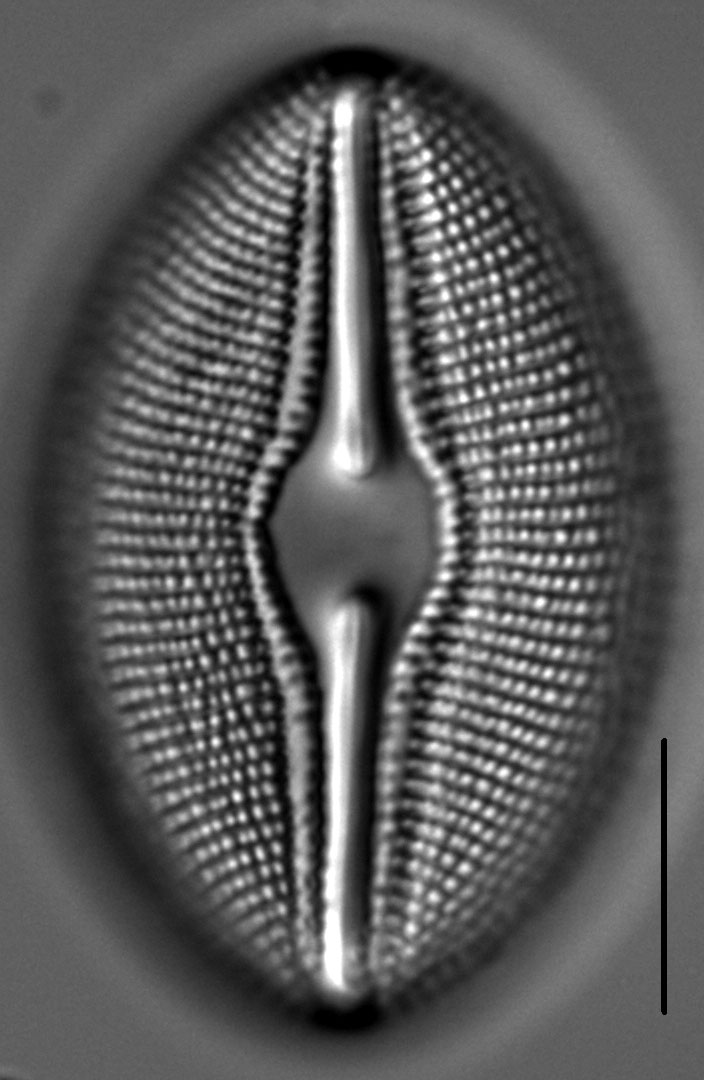Diploneis Ovalis 6