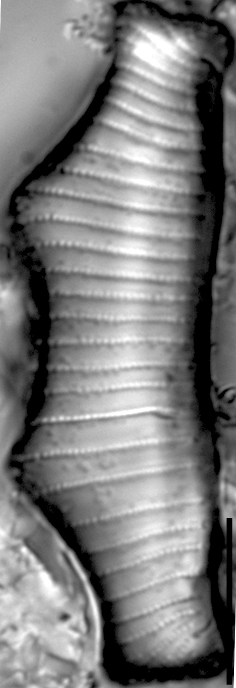 Eunotia montuosa LM5