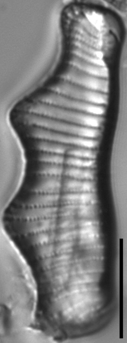 Eunotia montuosa LM6