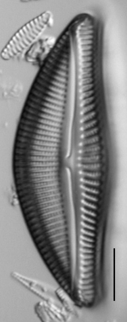 Encyonema yellowstonianum LM3