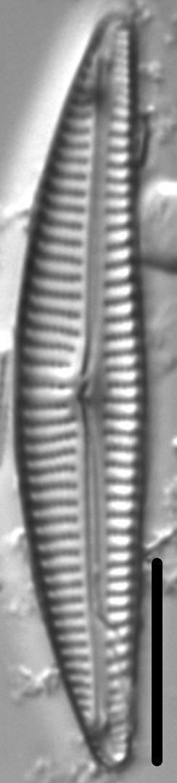 Encyonema Neogracile 1