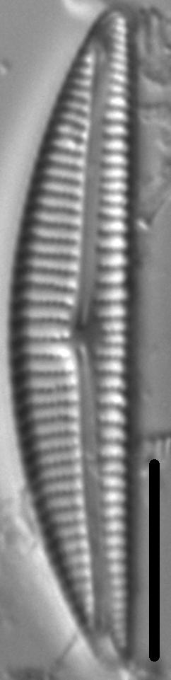 Encyonema Neogracile 3