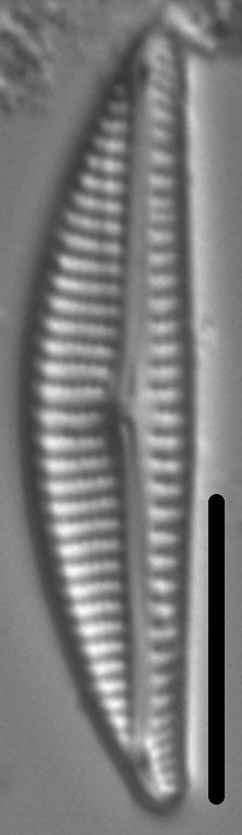 Encyonema Neogracile 6