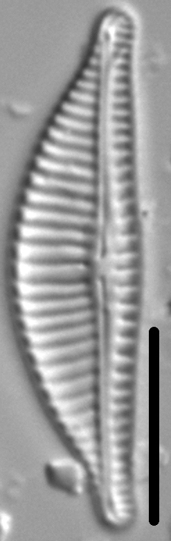 Encyonema Obscurum 1