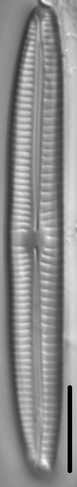 Encyonema sibericum LM1
