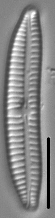Encyonema sibericum LM6