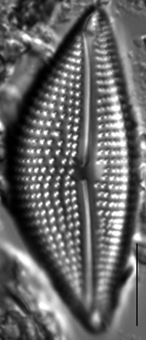 Encyonema triangulum LM6