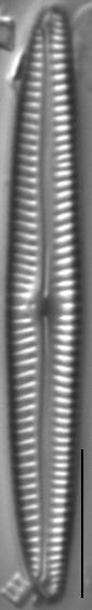Encyonopsis Neoamphioxys 6