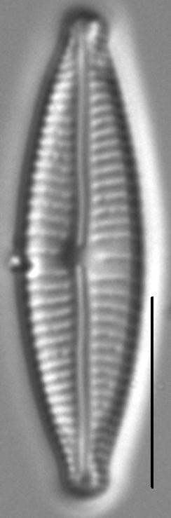 Encyonopsisaequaliformis6