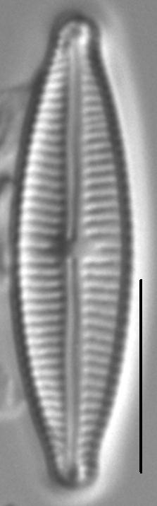 Encyonopsisaequaliformis7