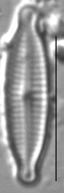 Encyonopsislacusalpinus1