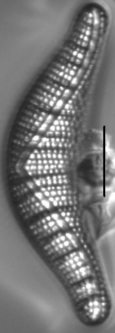 Epithemia Smithii6A