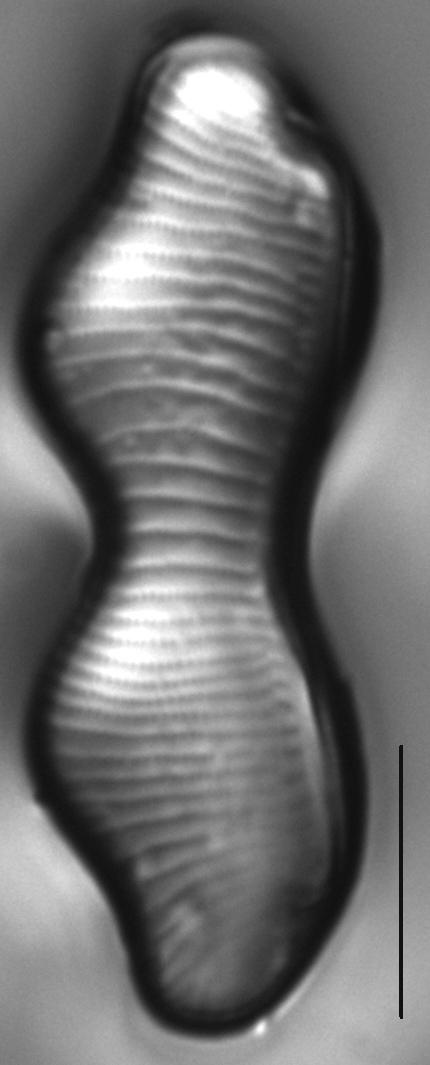 Eunotia gibbosa LM1