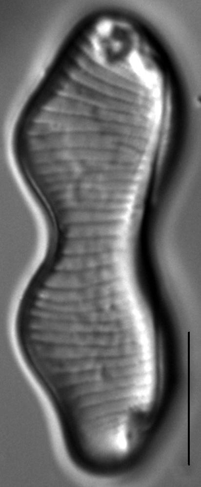 Eunotia gibbosa LM2