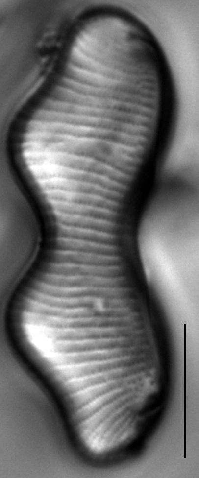 Eunotia gibbosa LM3