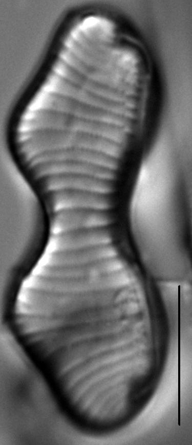 Eunotia gibbosa LM6