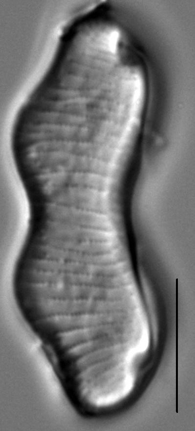 Eunotia gibbosa LM7