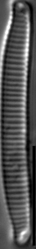 Eunotia horstii LM2