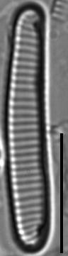 Eunotia Rhomboidea 114808A 5 1