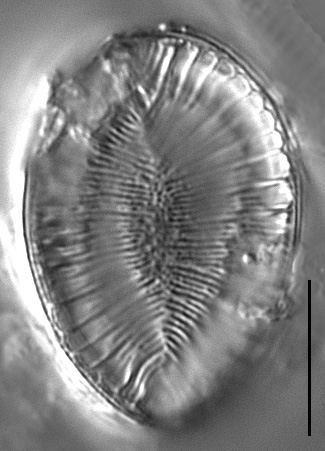 Surirella iowensis LM2