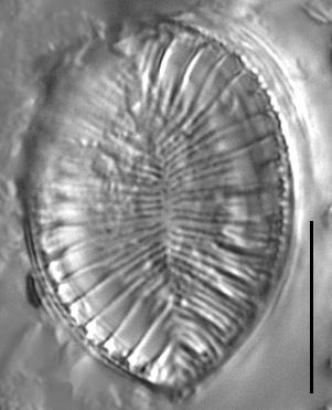 Surirella iowensis LM3