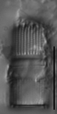 Aulacoseira nygaardii LM1