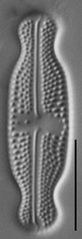 Luticola ventricosa LM2